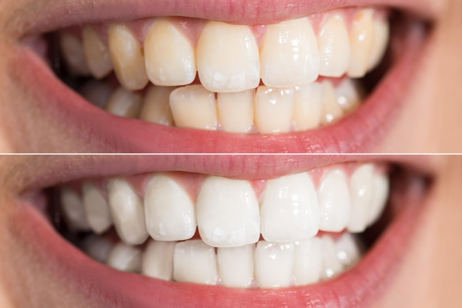 Эффективное отбеливание по системе «Beyond Polus» от GMS Dental